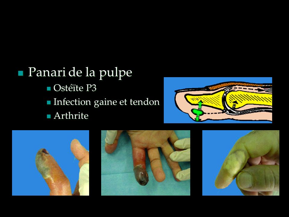 Panari de la pulpe Ostéïte P3 Infection gaine et tendon Arthrite