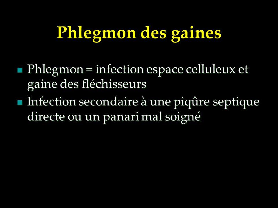 Phlegmon des gaines Phlegmon = infection espace celluleux et gaine des fléchisseurs.
