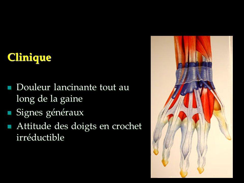 Clinique Douleur lancinante tout au long de la gaine Signes généraux