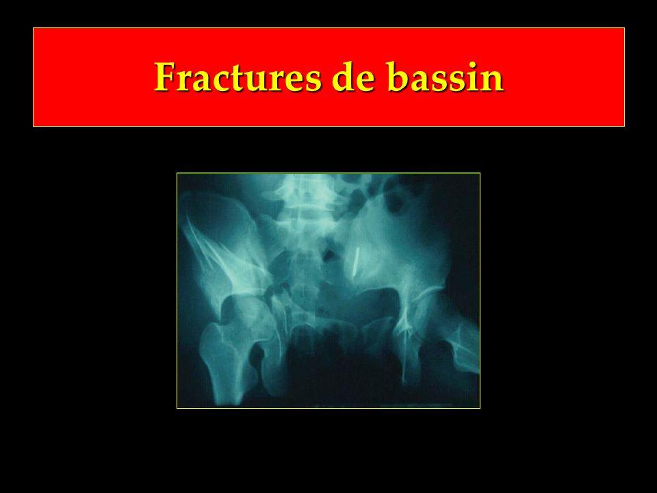 Fractures de bassin