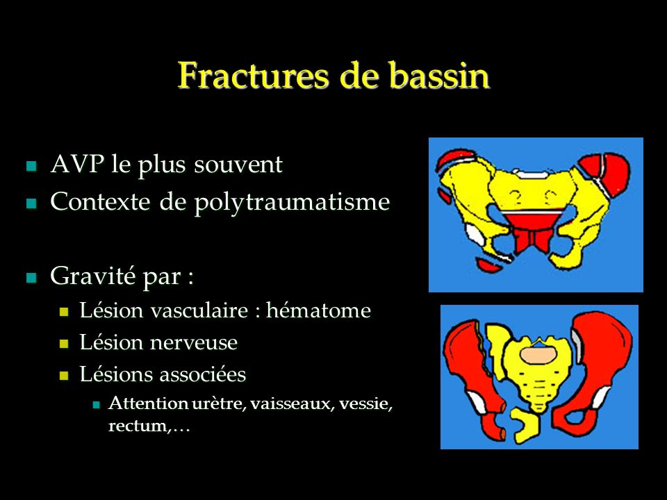 Fractures de bassin AVP le plus souvent Contexte de polytraumatisme