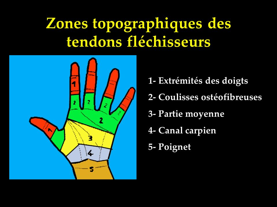 Zones topographiques des tendons fléchisseurs