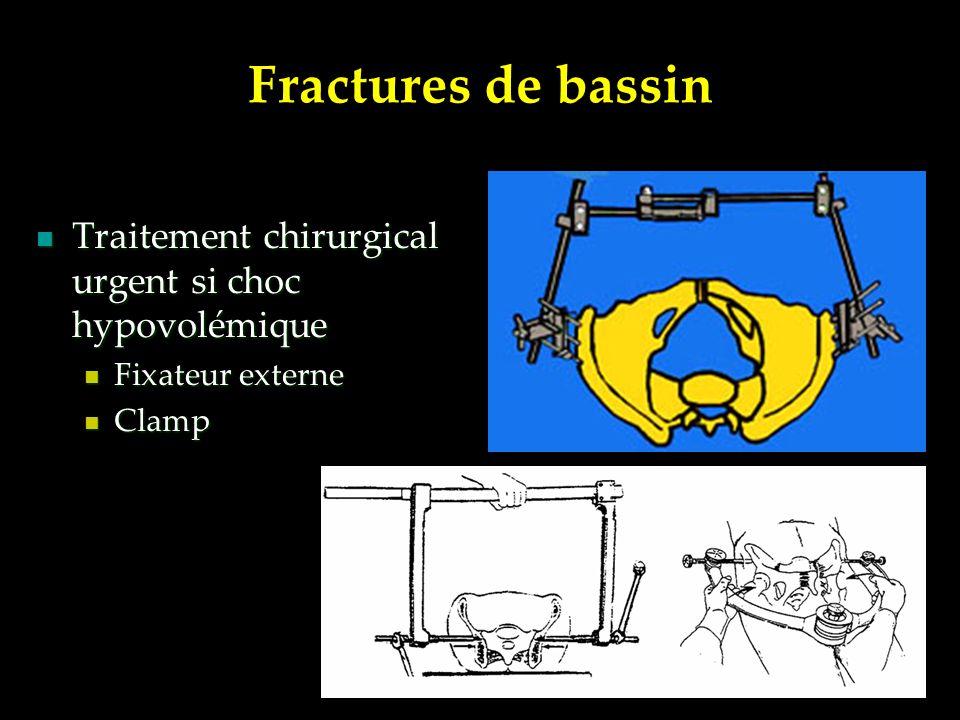 Fractures de bassin Traitement chirurgical urgent si choc hypovolémique Fixateur externe Clamp
