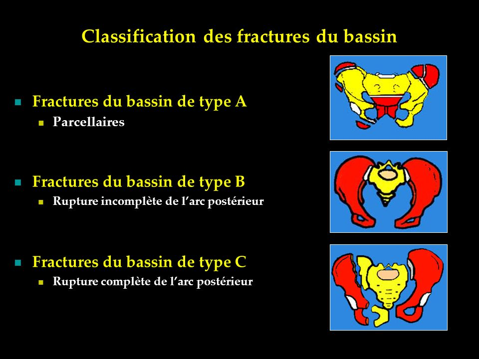 Classification des fractures du bassin
