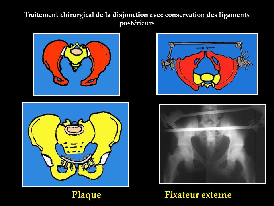 Plaque Fixateur externe