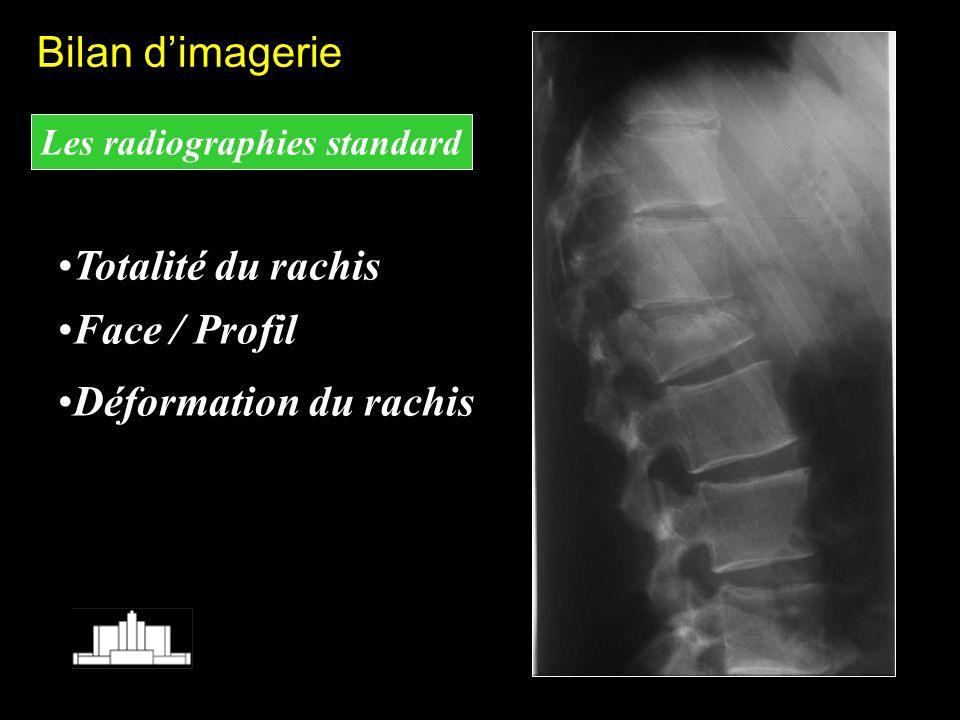 Bilan d'imagerie Totalité du rachis Face / Profil