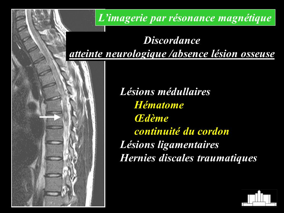 atteinte neurologique /absence lésion osseuse