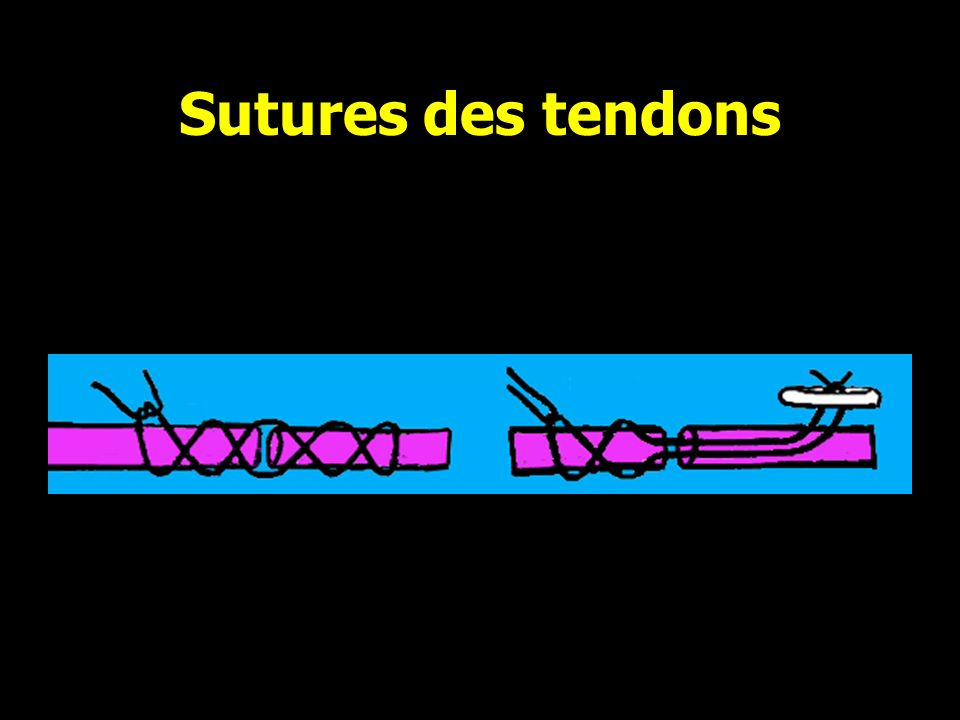 Sutures des tendons Suture directe Pull out Bouton