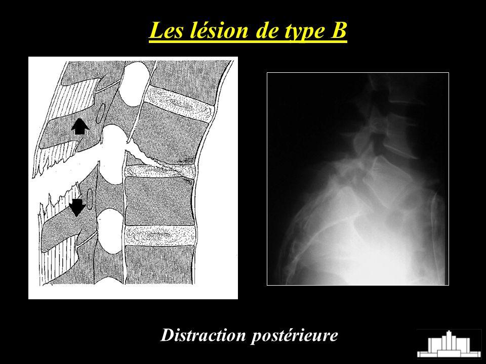 Les lésion de type B Distraction postérieure