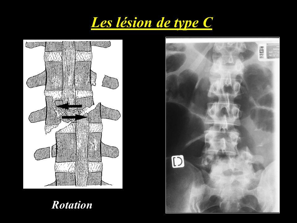 Les lésion de type C Rotation