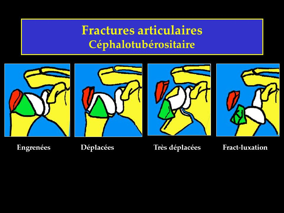 Fractures articulaires Céphalotubérositaire