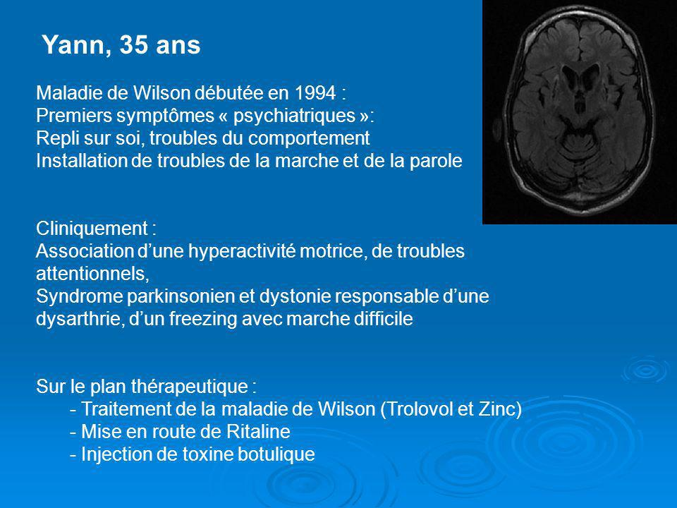 Yann, 35 ans Maladie de Wilson débutée en 1994 :
