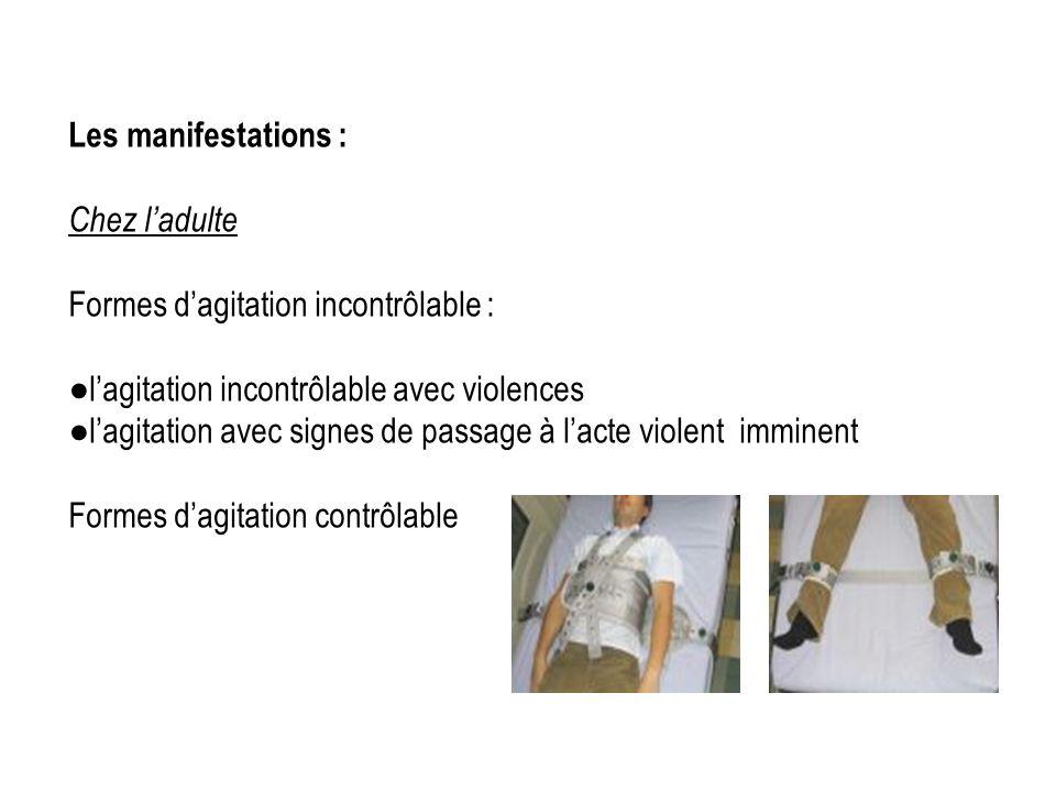Les manifestations : Chez l'adulte. Formes d'agitation incontrôlable : ●l'agitation incontrôlable avec violences.