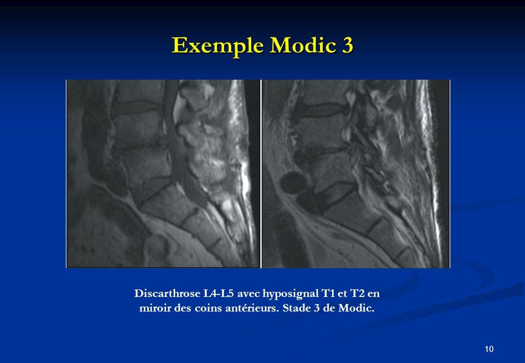 Exemple Modic 3 Discarthrose L4-L5 avec hyposignal T1 et T2 en