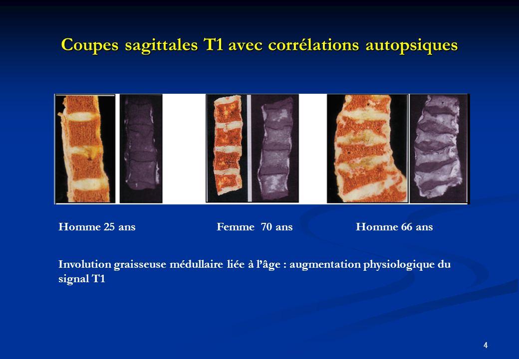 Coupes sagittales T1 avec corrélations autopsiques