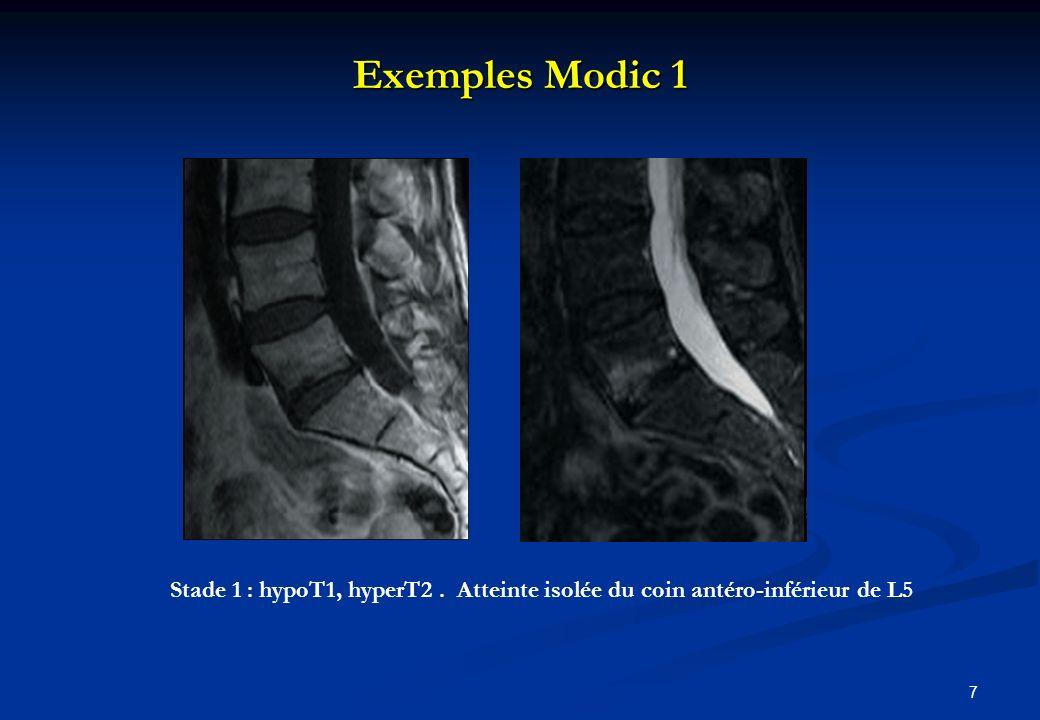 Exemples Modic 1 Stade 1 : hypoT1, hyperT2 . Atteinte isolée du coin antéro-inférieur de L5