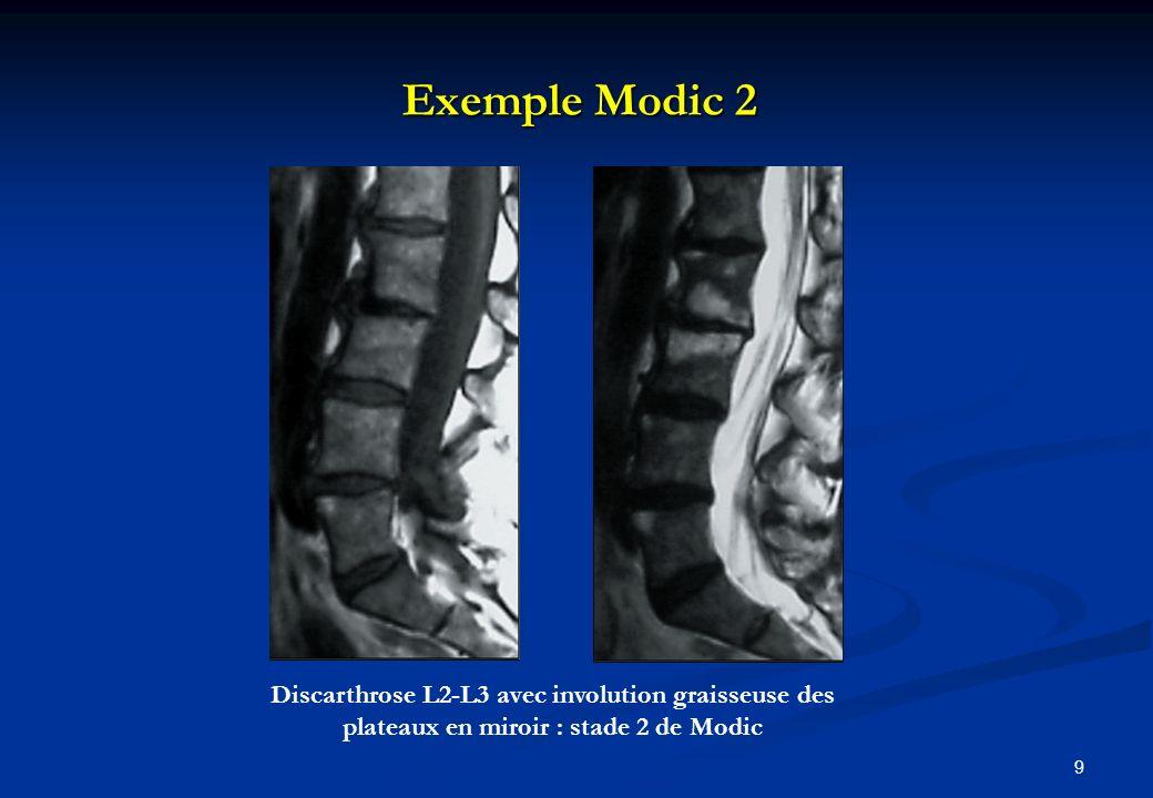 Exemple Modic 2 Discarthrose L2-L3 avec involution graisseuse des