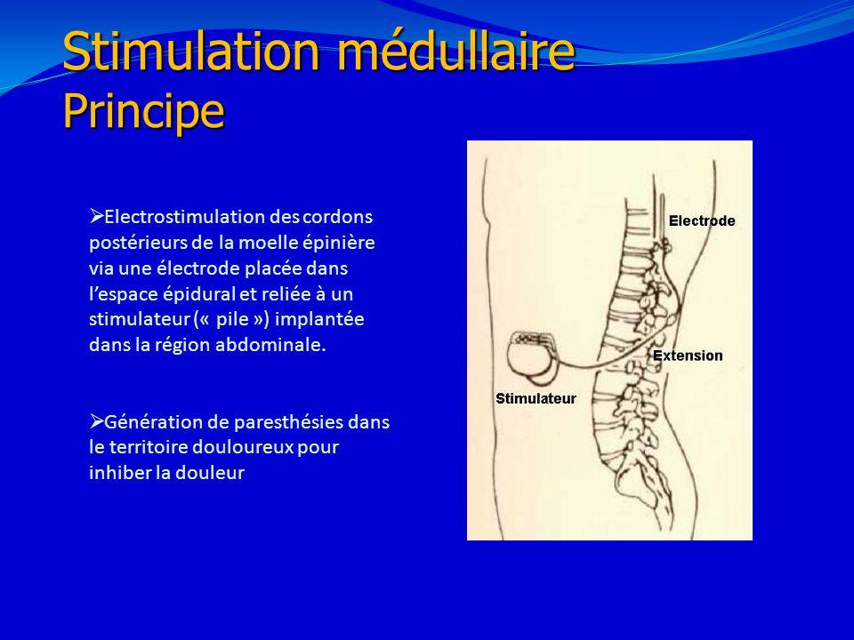 Stimulation médullaire Principe