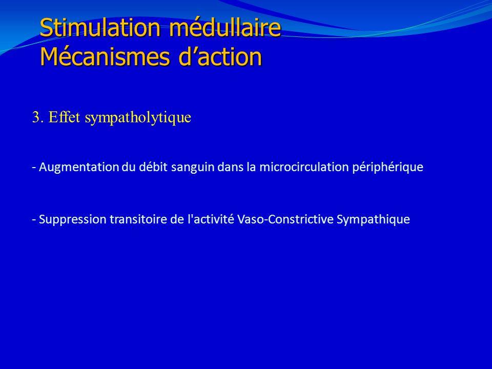 Stimulation médullaire Mécanismes d'action