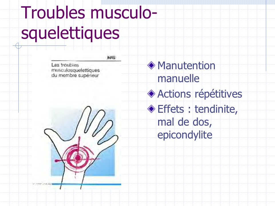 Troubles musculo-squelettiques