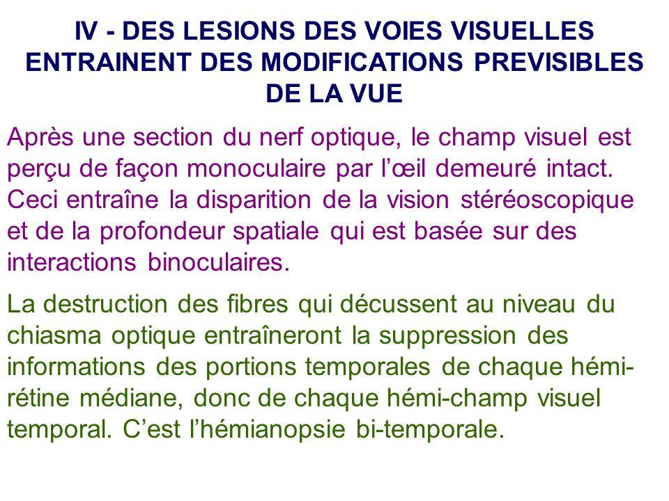 IV - DES LESIONS DES VOIES VISUELLES ENTRAINENT DES MODIFICATIONS PREVISIBLES DE LA VUE