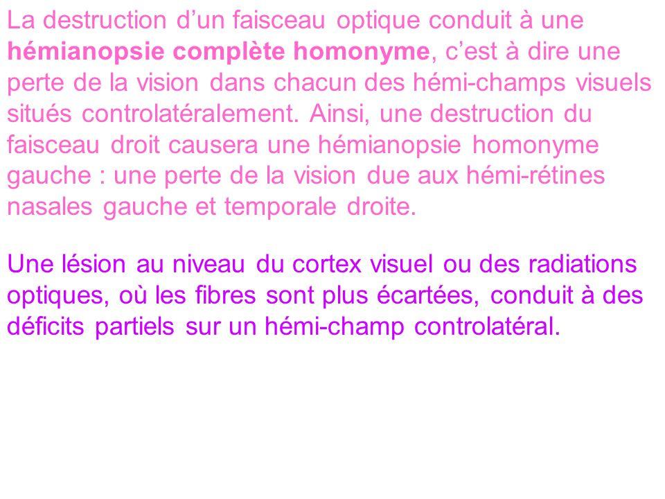 La destruction d'un faisceau optique conduit à une hémianopsie complète homonyme, c'est à dire une perte de la vision dans chacun des hémi-champs visuels situés controlatéralement. Ainsi, une destruction du faisceau droit causera une hémianopsie homonyme gauche : une perte de la vision due aux hémi-rétines nasales gauche et temporale droite.