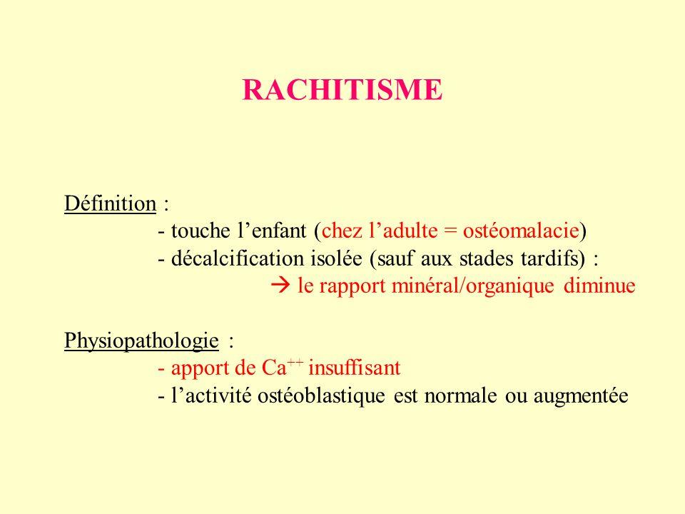 RACHITISME Définition :