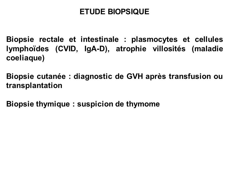 ETUDE BIOPSIQUE Biopsie rectale et intestinale : plasmocytes et cellules lymphoïdes (CVID, IgA-D), atrophie villosités (maladie coeliaque)