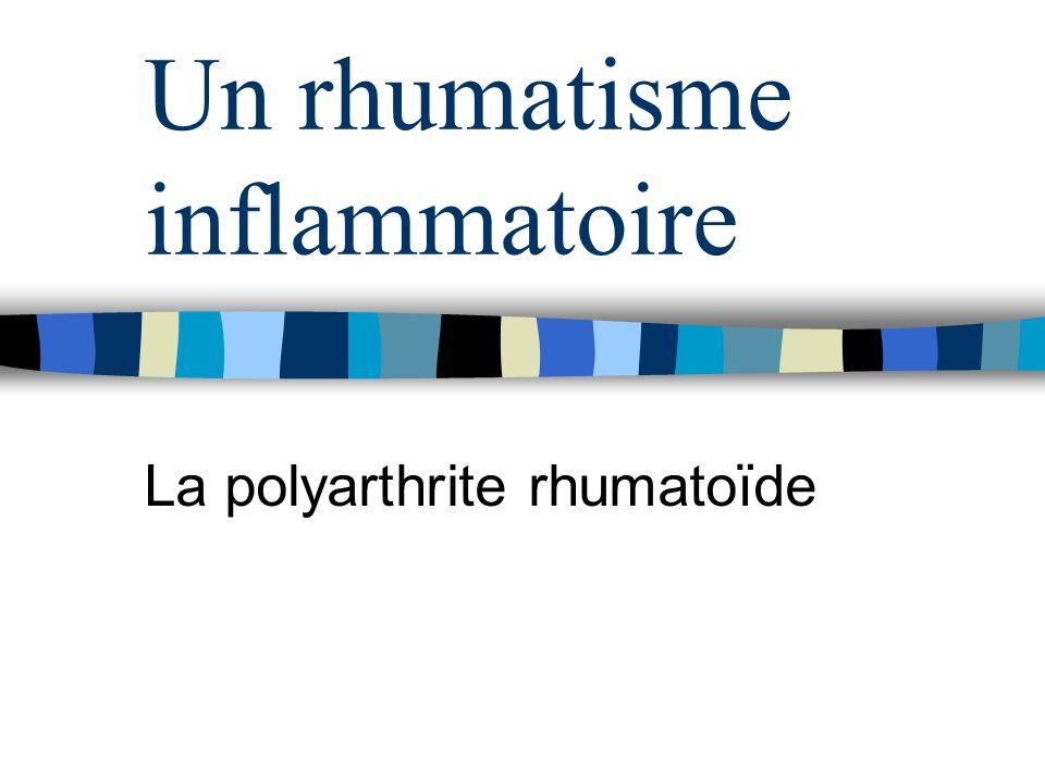 Un rhumatisme inflammatoire