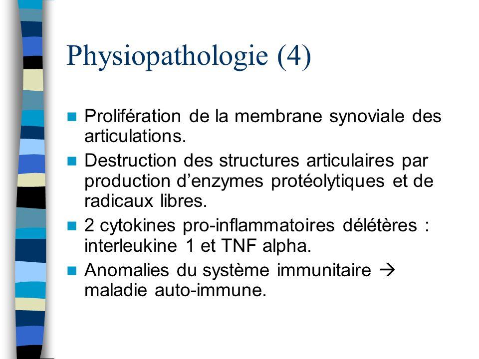 Physiopathologie (4) Prolifération de la membrane synoviale des articulations.