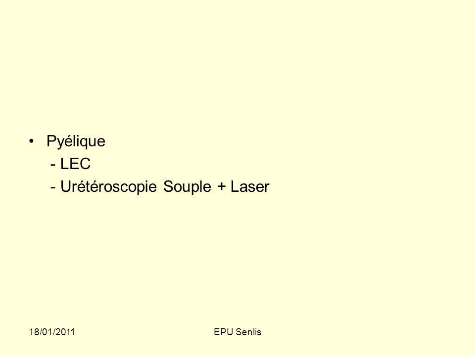 - Urétéroscopie Souple + Laser
