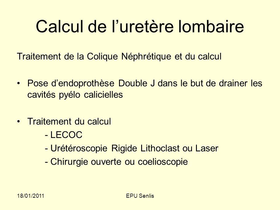 Calcul de l'uretère lombaire