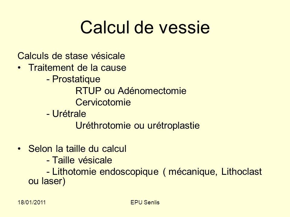Calcul de vessie Calculs de stase vésicale Traitement de la cause