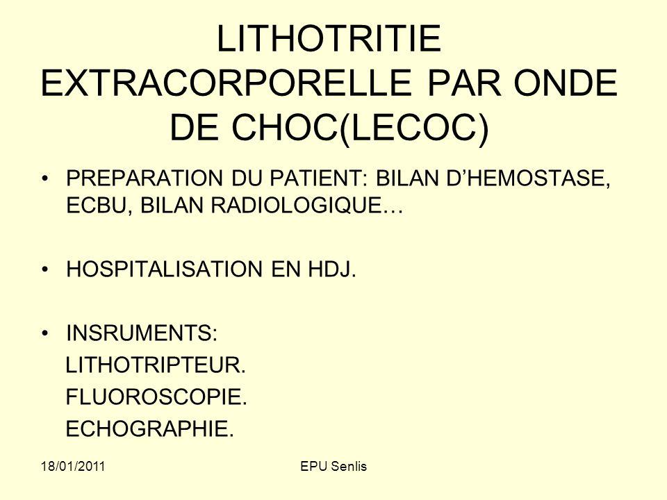 LITHOTRITIE EXTRACORPORELLE PAR ONDE DE CHOC(LECOC)