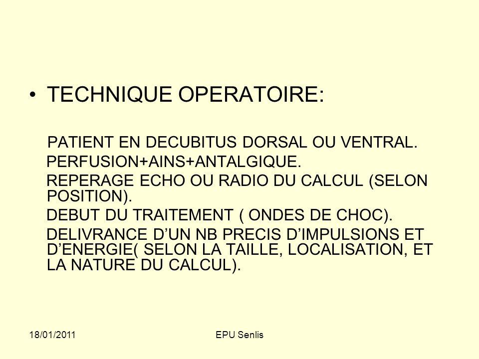 TECHNIQUE OPERATOIRE: