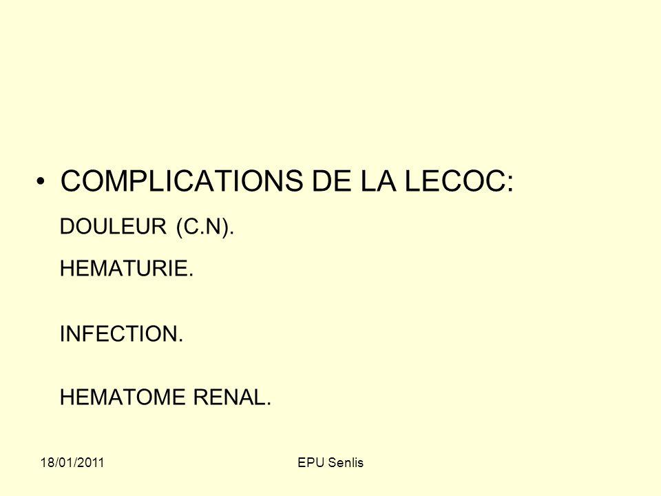 COMPLICATIONS DE LA LECOC: HEMATURIE.