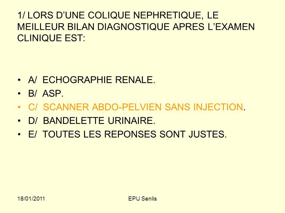C/ SCANNER ABDO-PELVIEN SANS INJECTION. D/ BANDELETTE URINAIRE.