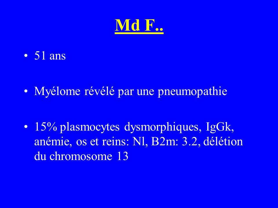 Md F.. 51 ans Myélome révélé par une pneumopathie