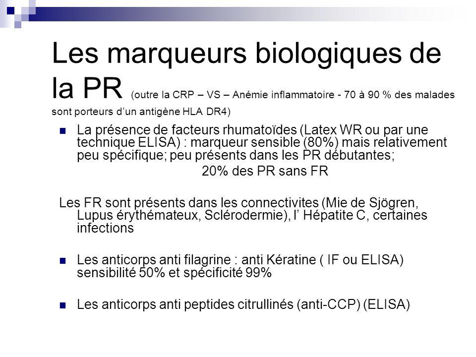 Les marqueurs biologiques de la PR (outre la CRP – VS – Anémie inflammatoire - 70 à 90 % des malades sont porteurs d'un antigène HLA DR4)