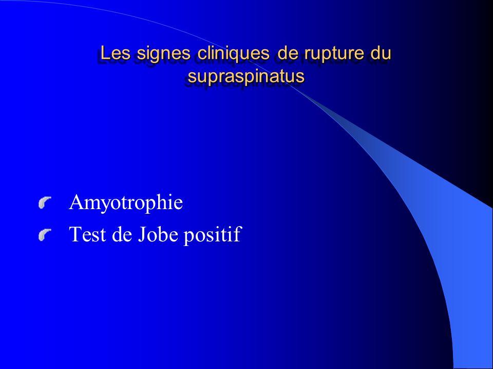 Les signes cliniques de rupture du supraspinatus
