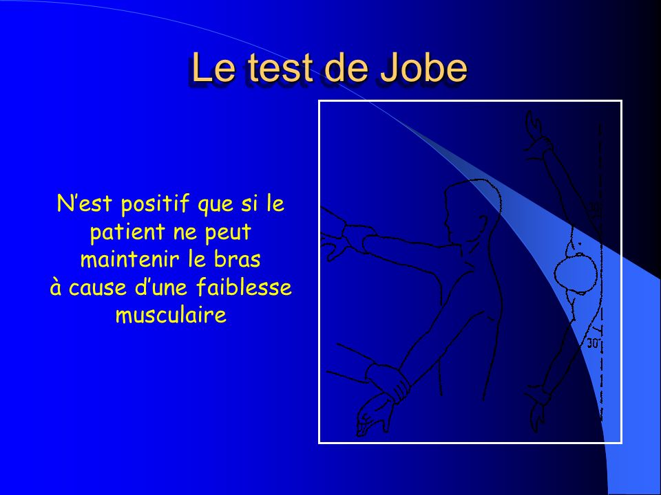 Le test de JobeN'est positif que si le patient ne peut maintenir le bras.