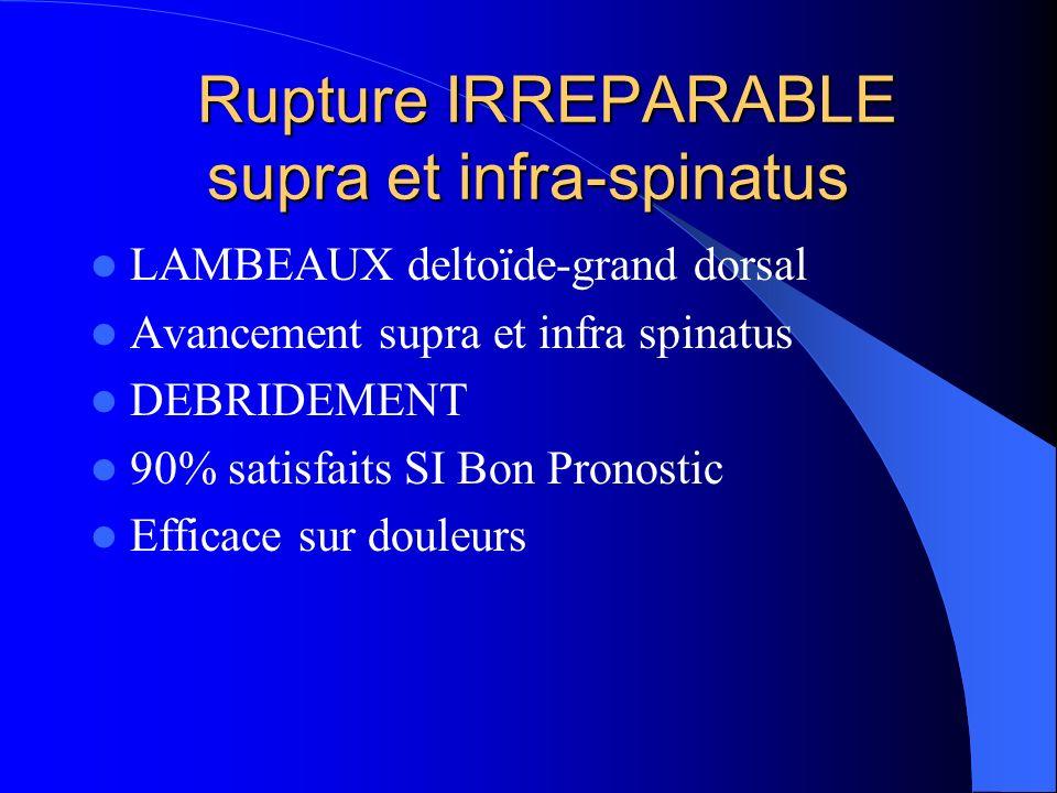 Rupture IRREPARABLE supra et infra-spinatus