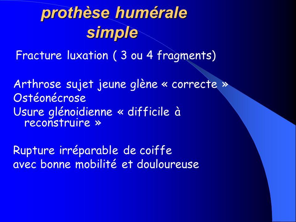 prothèse humérale simple