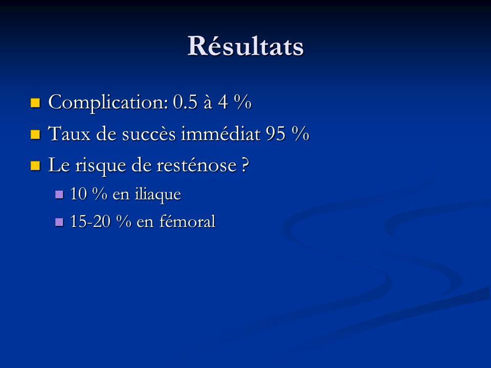 Résultats Complication: 0.5 à 4 % Taux de succès immédiat 95 %