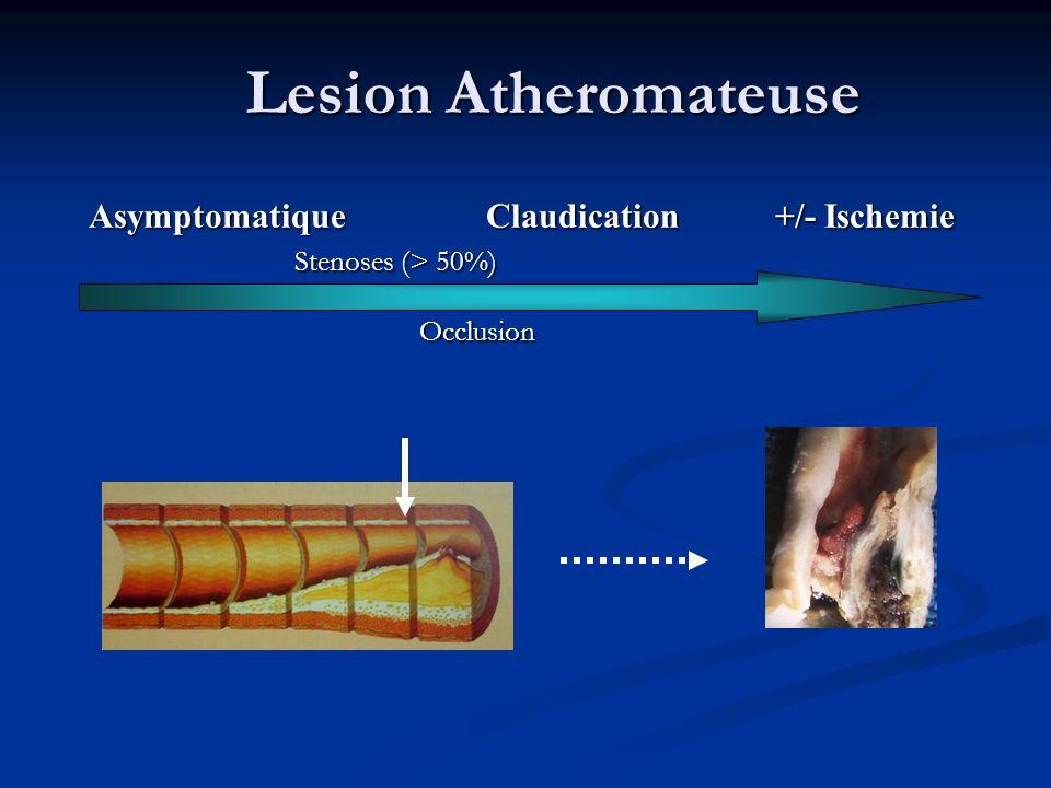 Lesion Atheromateuse Asymptomatique Claudication +/- Ischemie