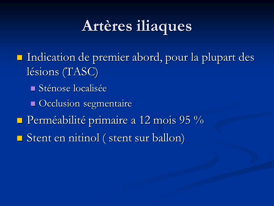 Artères iliaques Indication de premier abord, pour la plupart des lésions (TASC) Sténose localisée.