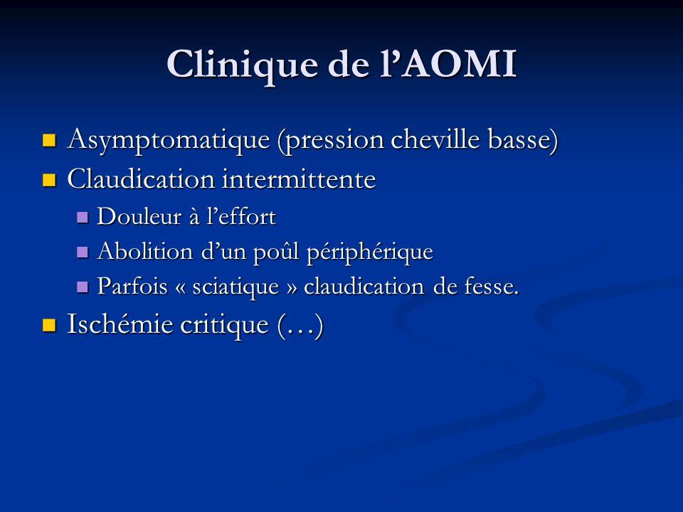 Clinique de l'AOMI Asymptomatique (pression cheville basse)