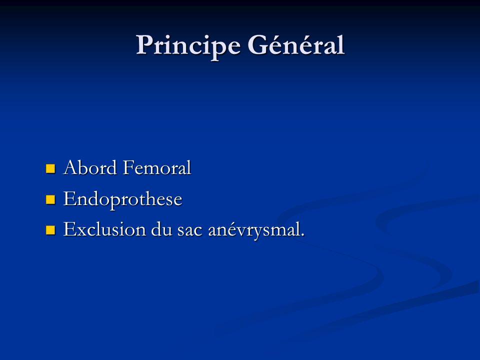 Principe Général Abord Femoral Endoprothese