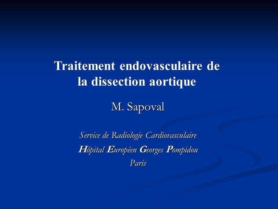 Traitement endovasculaire de la dissection aortique