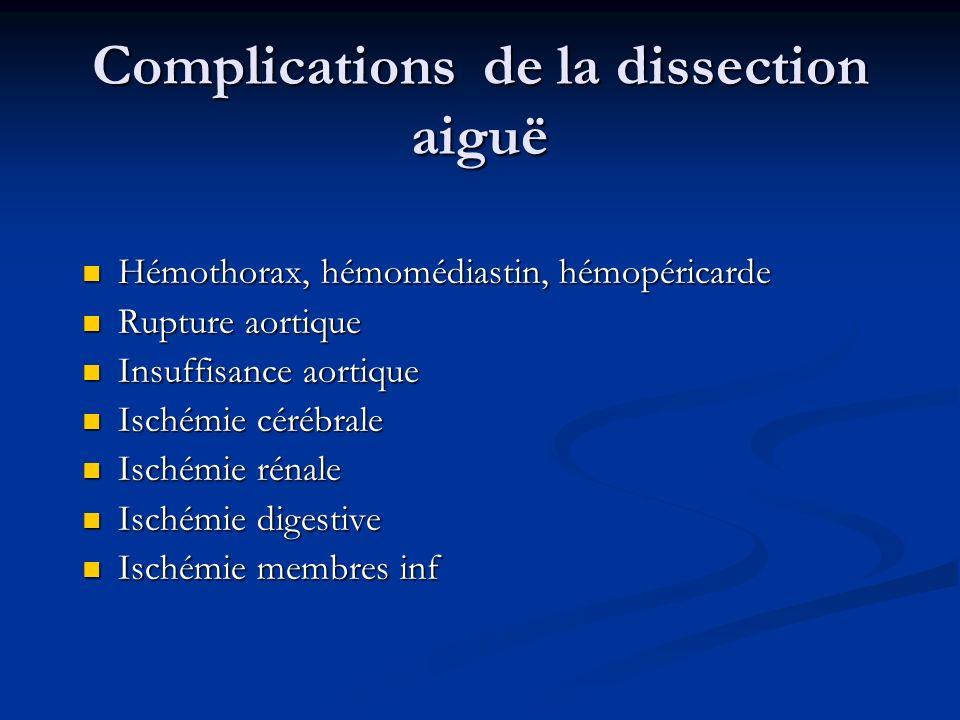 Complications de la dissection aiguë